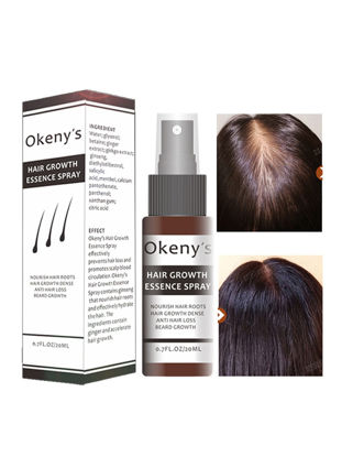 Picture of Hair Growth Essence Spray Growth Oil Preventing Baldness Anti Hair Loss Hair Care Nourishing Enhance