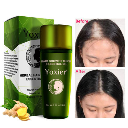 Picture of Herbal Hair Growth Essential Oil Hair Care Hair Loss Promote Thick Fast Repair Growing Treatment 20ml