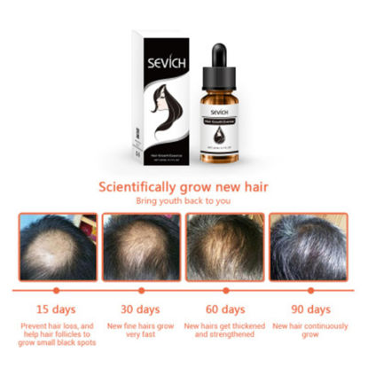 Picture of Natural Hair Growth Essence Anti-hair Loss Care Hair Revitalizing Essence 20ml